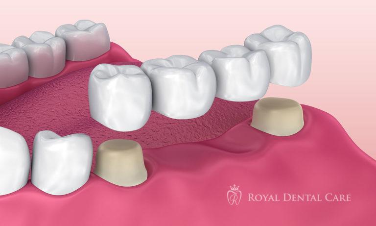 ©-Royal-Dental-Care-dentist-cosmetic-dentistry-crowns-and-bridges-bridge