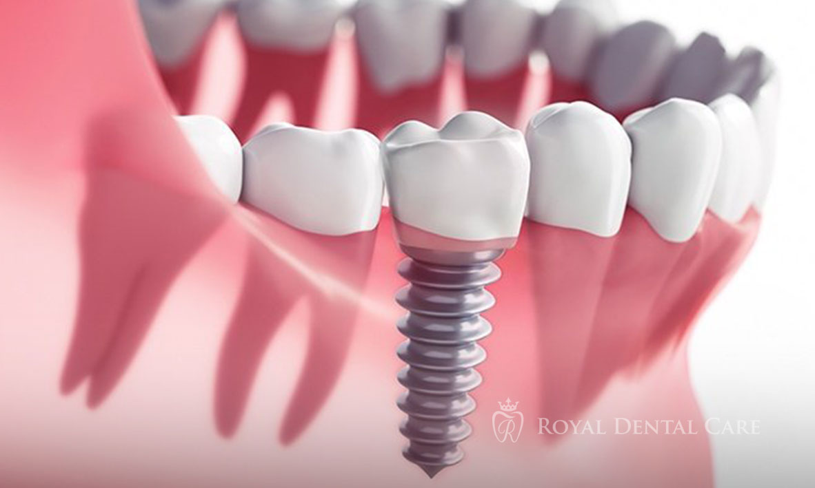 ©-Royal-Dental-Care-dentist-cosmetic-dentistry-implants-2