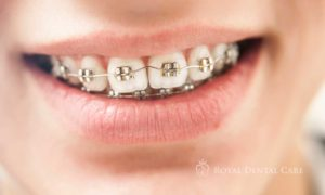©-Royal-Dental-Care-dentist-cosmetic-dentistry-orthodontics-boy-with-braces