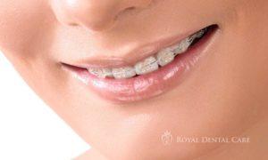 ©-Royal-Dental-Care-dentist-cosmetic-dentistry-orthodontics-ceramic-braces-1