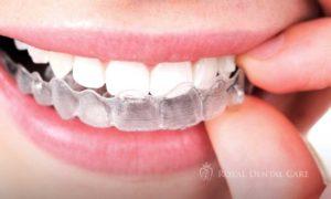 ©-Royal-Dental-Care-dentist-cosmetic-dentistry-orthodontics-invisalign-1