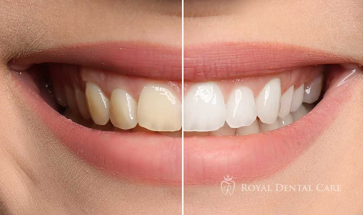 -Royal-Dental-Care-dentist-cosmetic-dentistry-teeth-whitening-3-e