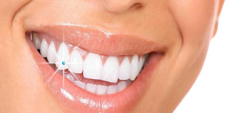 Tooth Gem Twinkles