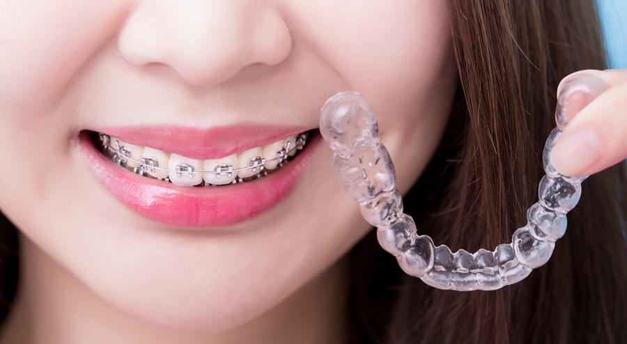 Teeth Straightening Royal Dental Care