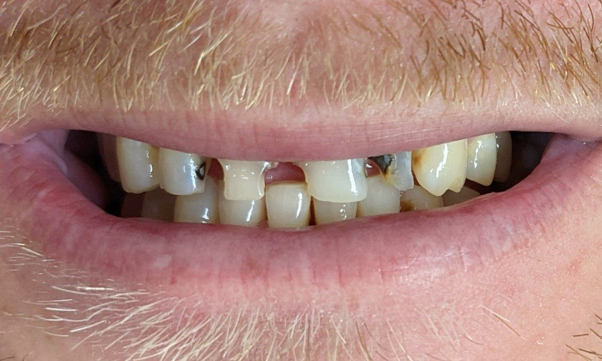 ©-Royal-Dental-Care-Dentist-before-and-after-teeth-smile-makeover