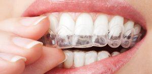 Custom Teeth Whitening Trays